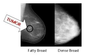 dense breast 2