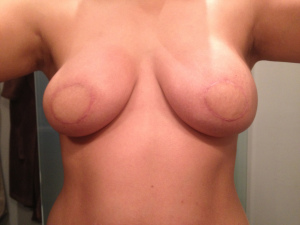 breast before surgery2