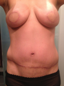 breast prior surgery