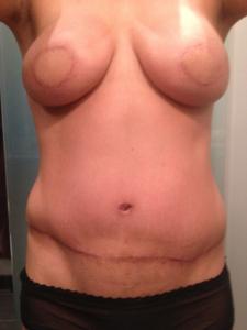 breast prior surgery